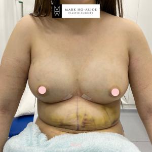 Hybrid Breast Surgery