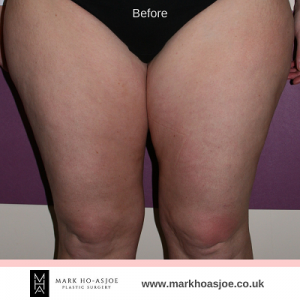 Liposuction Thigh Lift