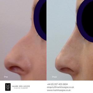 Nose job images