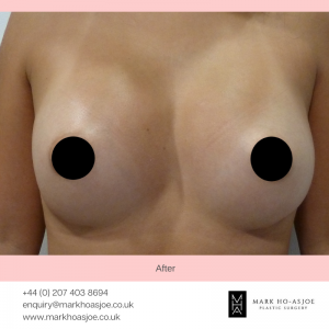 Breast Implant Surgeon
