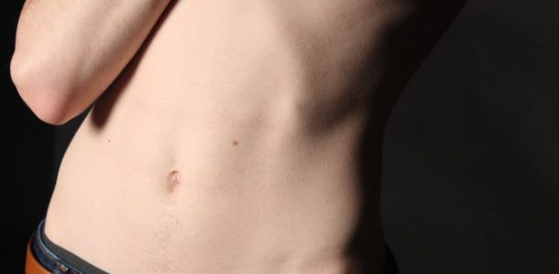 LIPOSUCTION: 4 COMMON MYTHS & MISCONCEPTIONS