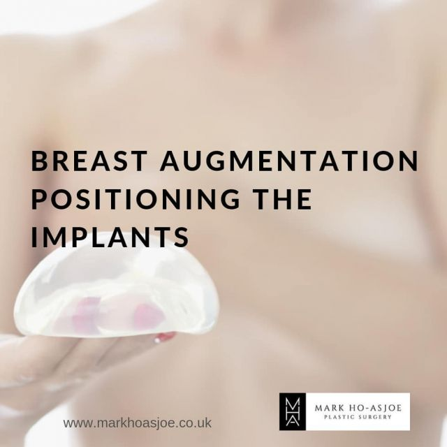 In Breast Augmentation, where is the implant placed and why does it matter?  The reason surgeons can sometimes be hesitant to offer advice as to which placement is best without firstly seeing the patient is covered in my latest blog. A full consultation should always be arranged with your surgeon.  Link in the bio. https://markhoasjoe.co.uk/blog/breast-augmentation-positioning-the-implants/  For consultations: ☎️ +44 (0) 207 403 8694 🖥 Virtual Consultations Available  📲 enquiry@markhoasjoe.co.uk ⌨ www.markhoasjoe.co.uk  . . . . #breastimplants #breasts #breastsurgeon #breastsurgery #breastaugmentation #motivaimplants #breastimplant #implants #breastsurgeon #cosmeticsurgery #implantexchangesurgery #health #aestheticsurgery #markhoasjoe #blogging #blogger #blog #breastshape #breastcorrection #plasticsurgery #plasticsurgeon