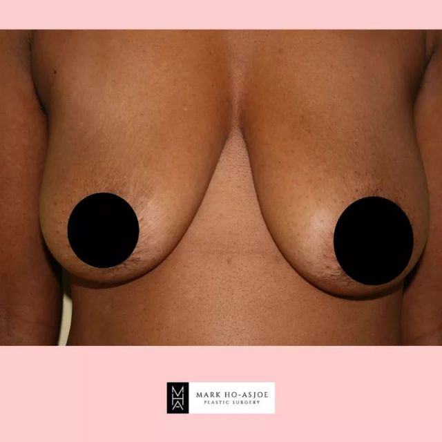 Although breast reduction/uplift and symmetry is a major surgery, it is a fairly routine practice that can have incredibly satisfactory results when performed by a board-certified plastic surgeon.  Breast reduction consists of removal of part of the fatty tissue from the breasts, as well as the extra skin and some of the breast tissue.  It's a procedure similar to a breast lift, in that it not only reduces the size of the breast, but it places them in a more youthful position.  For consultations: ☎️ +44 (0) 207 403 8694 🖥 Virtual Consultations Available  📲 enquiry@markhoasjoe.co.uk ⌨ www.markhoasjoe.co.uk  . . . . #breastsurgery #breastuplift #breastvolume #breastsymmetry #breastreduction #breastuplift #breastimplants #breastcorrection #breasthealth #breastshape #breastuplift #markhoasjoe #plasticsurgery #cosmeticsurgery #aestheticsurgery #youthful #beforeandafter #beforeandafterbody #london #londonbest